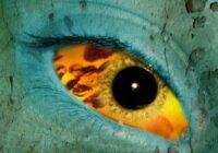 Yellow Fever - Жёлтая лихорадка